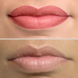 Lippen 1